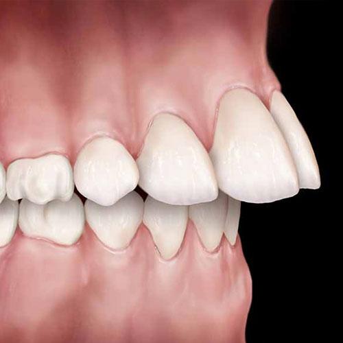Upper Front</br>Teeth Protrusion