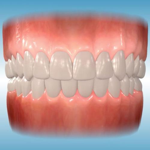 Dental midlines</br>not matched